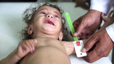 14 مليون يمني مهددون بالمجاعة نصفهم أطفال