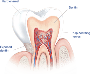 حساسية الأسنان.. أسبابها وعلاجها- حلول العالم