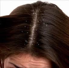 قشرة الشعر كابوس لابد أن ينتهي