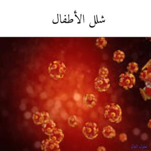 صورة عن شلل الاطفال