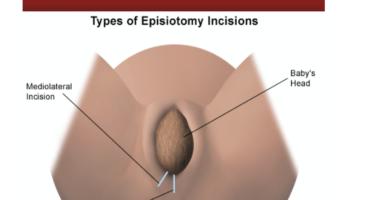 قص العجان Episiotomy