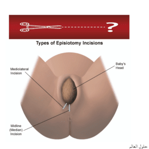 قص العجان Episiotomy